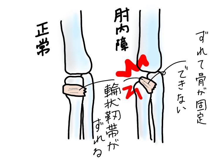 肘内障のイラスト