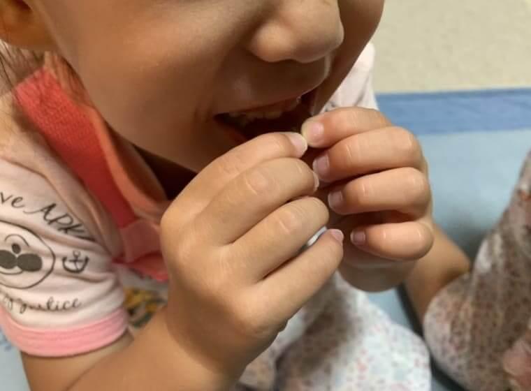 セノッピーをかじって食べる3歳の女の子